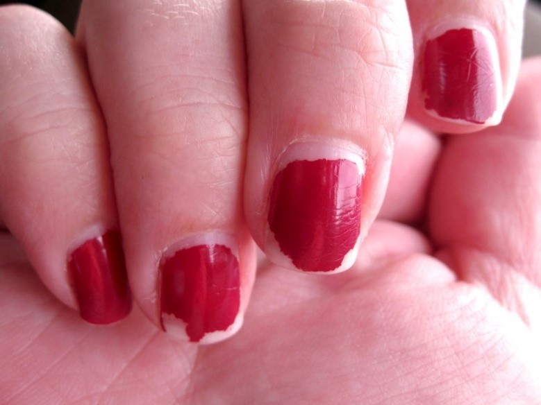 chipped fingernail polish on fingers